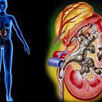 Suy thận cấp – nguyên nhân và cách điều trị triệt để