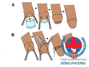 Cách chữa dài bao quy đầu truyền thống bằng dao