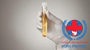 Đi tiểu nhiều ra máu là bệnh gì? Giải pháp khi đi tiểu ra máu