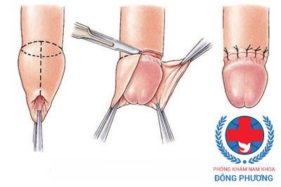 Hình ảnh mô tả quy trình cắt bao quy đầu