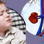Suy thận ở trẻ em những thông tin đáng báo động