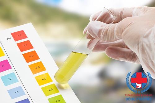 Xét nghiệm nước tiểu là 1 xét nghiệm quan trọng