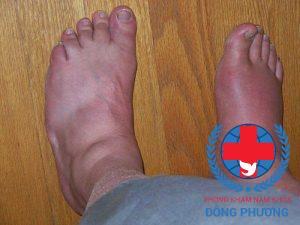 Phù nề là một trong các triệu chứng giai đoạn này