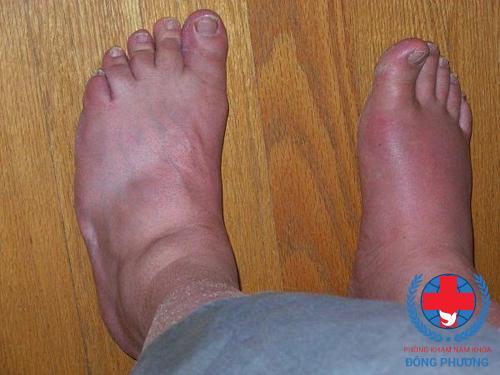 Phù nề là một trong các triệu chứng suy thận giai đoạn 2