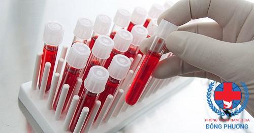 Xét nghiệm máu trong suy thận