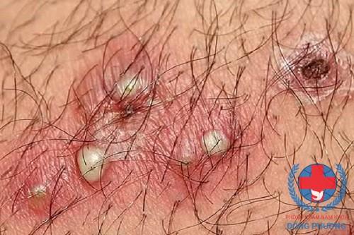 Mụn nước nhỏ li ti là dấu hiệu điển hình của mụn rộp sinh dục