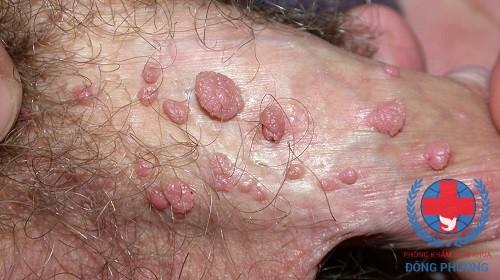 Cẩn thận với 4 nguyên nhân bệnh sùi mào gà ở nam giới!