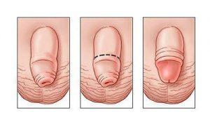Tiểu phẫu xử lí bao quy đầu dài cần được thực hiện càng sớm càng tốt!