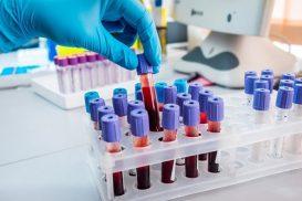 Xét nghiệm HPV ở đâu tốt nhất?