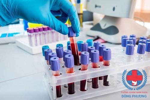 Kiếm tra, xét nghiệm HPV ở đâu uy tín – chính xác tại Hà Nội?