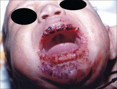Biểu hiện của bệnh giang mai có thể dễ dàng nhận diện ở trẻ sơ sinh!!!