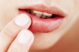Sùi mào gà ở môi cần được chữa trị kịp thời!