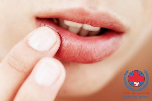 Cảnh giác với bệnh sùi mào gà ở môi – Nguyên nhân và cách chữa trị!
