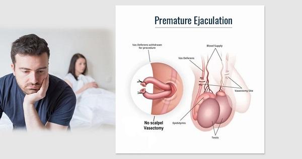Các nguy cơ khó lường đến từ bệnh xuất tinh sớm nam giới