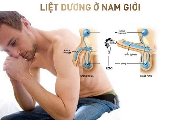 Chua Liet Duong Tot Nhat 1