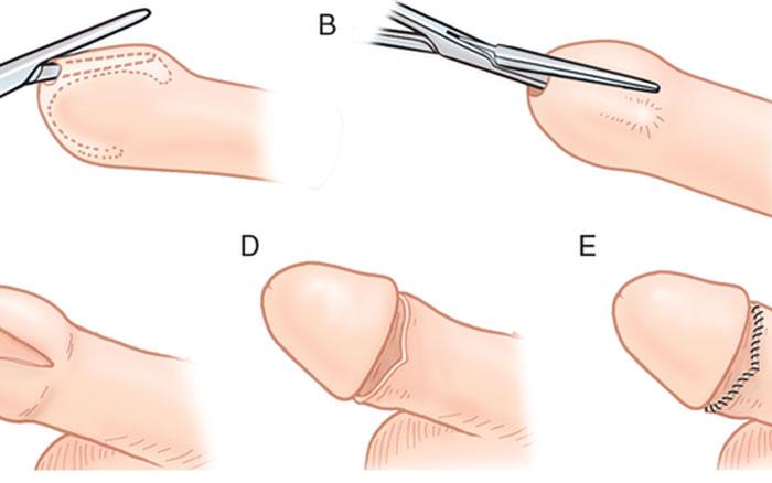 Cần lưu ý gì sau khi cắt bao quy đầu ở nam giới